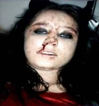 אלישה הסלר אחרי שהוכתה