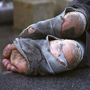 homeless-feet-thumb